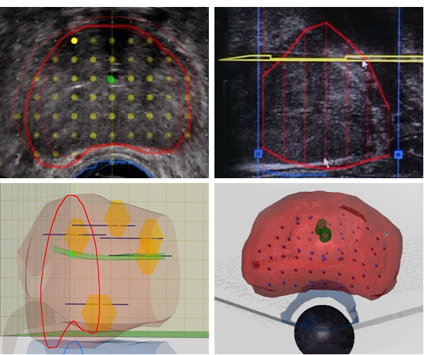 3D Biopsy Mapping Software